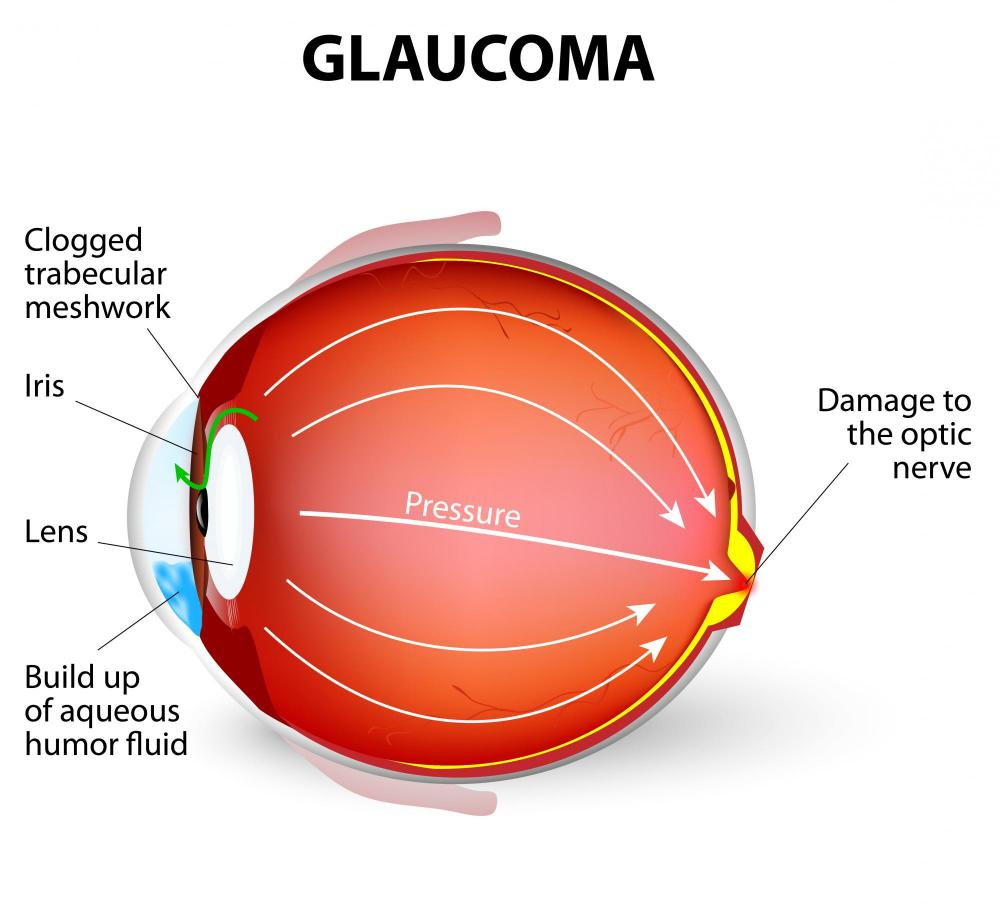 Glaucoma treatment Kissimmee Eye Doctor
